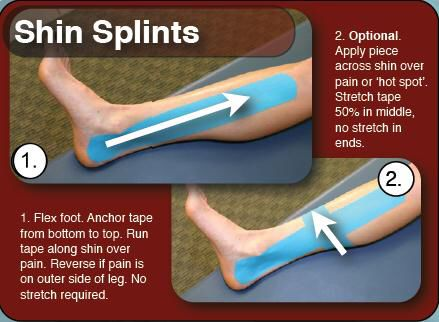 kt tape instructions achilles tendonitis